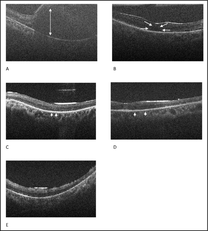 Spectral-domain optical coherence tomography images obtained preoperatively, intraoperatively, and postoperatively from case 2. (A) Preoperative imaging confirms a macula-off retinal detachment (arrow). (B) Intraoperative image following instillation of perfluoro-n-octane reveals residual subretinal fluid (arrows). (C) Postoperative image at 1 month shows subretinal fluid under silicone oil (arrowheads). (D) Postoperative image at 4 months shows a trace amount of subretinal fluid under silicone oil (arrowheads). (E) Postoperative image at 6 months shows resolution of subretinal fluid under silicone oil.
