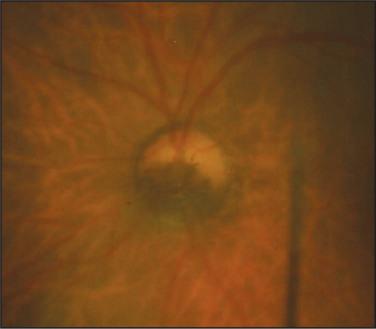 Case 2. Optic nerve photograph showing a dark brown pigmented inferior optic disc melanocytoma.
