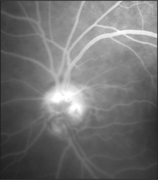 Case 2. Fluorescein angiography of the left optic nerve demonstrating marked hypofluorescence in the region of the melanocytoma.