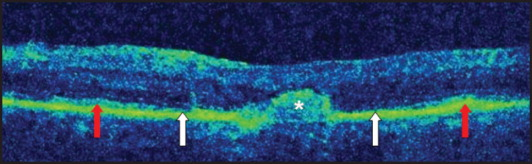 High-definition spectral-domain optical coherence tomography raster image of patient at presentation. Image shows subretinal deposit (asterisk) with an adjacent area of retinal pigment epithelium loss. Areas of outer retinal atrophy (white arrows) are shown, flanked by areas of relatively normal outer retina (red arrows).