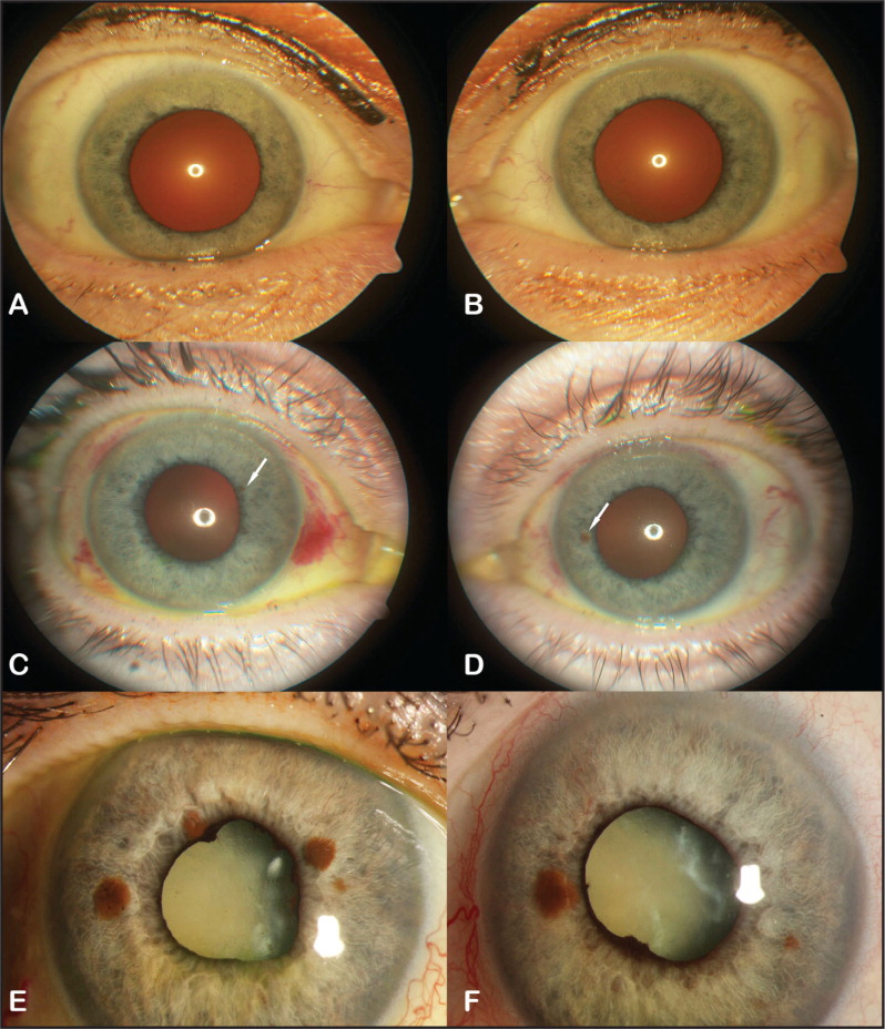 (A and B) Anterior segment photographs at presentation with no evident abnormalities. (C and D) Anterior segment photographs 4 months after presentation showing discrete iris pigmented lesions (arrows). (E and F) Anterior segment photographs 12 months after presentation showing total cataracts, multiple iris pigmented lesions, and iris neovascularization.