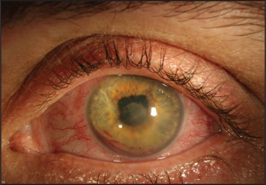 Slit-lamp photography at presentation demonstrating conjunctival injection, corneal edema, anterior chamber fibrin, and hyphema.
