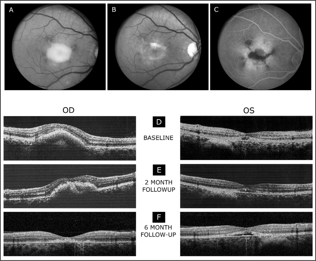 Fundus photographs of the right eye (A), demonstrating an elevated vitelliform macular lesion with hyperpigmented changes at the margins. After 6 months of treatment (B), the vitelliform macular lesion in the right eye was less apparent when compared to the baseline. The right eye showed a small residual yellowish lesion in the macula with pigment on the surface of the lesion. Fluorescein angiogram (late frames) of the right eye (C) shows window defects of hyperfluorescence in the macula with hypofluorescent loci centrally. (D) Spectral-domain optical coherence tomography scans at baseline: the right eye (OD) shows an elevation of the retinal pigment epithelium (RPE) associated with the vitelliform macular lesion and the left eye (OS) shows a small elevated RPE lesion with foveal disruption of the inner/outer segment junction of the photoreceptor layer. Spectral-domain optical coherence tomography scans demonstrate a reduction of the vitelliform macular lesion and retinal thickness while receiving treatment with topical brinzolamide 1% following 2 (E) and 6 (F) months of treatment. The left eye shows a shallow RPE elevation most evident at the 6-month visit.