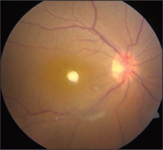 Color fundus photograph of the right eye demonstrating a yellow-white chorioretinal lesion protruding through macula and into the vitreous cavity. A thick area of vitritis overlies the inferior temporal arcade, partially obscuring it.