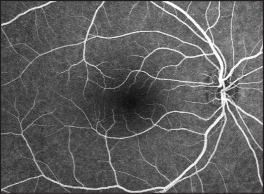 Fluorescein angiography 2 days after treatment with systemic high-dose corticosteroid shows no pathologic finding to justify symptoms of vague central scotoma and metamorphopsia.