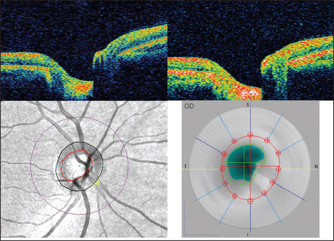 Optic Nerve Head Imaging by Spectral-Domain and Time-Domain Optical Coherence Tomography (OCT). Top: Horizontal Scan of the Same Optic Nerve Head by Spectral-Domain OCT (left) and Time-Domain OCT (right). Bottom: Optic Disc and Cup Edges Reconstructed by Spectral-Domain OCT (left) and Time-Domain OCT (right).
