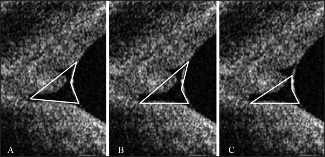 Three identical Fourier-domain optical coherence tomography images of the lower eyelid tear meniscus of a patient with conjunctivochalasis, demonstrating three potential measuring techniques for estimating cross-sectional area and some possible sources of variability. (A) Area within lines is inclusive of nearly the entire meniscus, but also includes a large portion of bulbar conjunctiva. (B) Area within lines excludes the superior and posterior portions of the meniscus, but includes less bulbar conjunctiva. (C) Area within lines contains minimal conjunctiva, but excludes large portions of the meniscus.