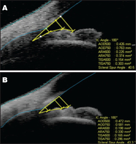 Unenhanced (A) and enhanced (B) scan acquisition protocols with angle measurements.