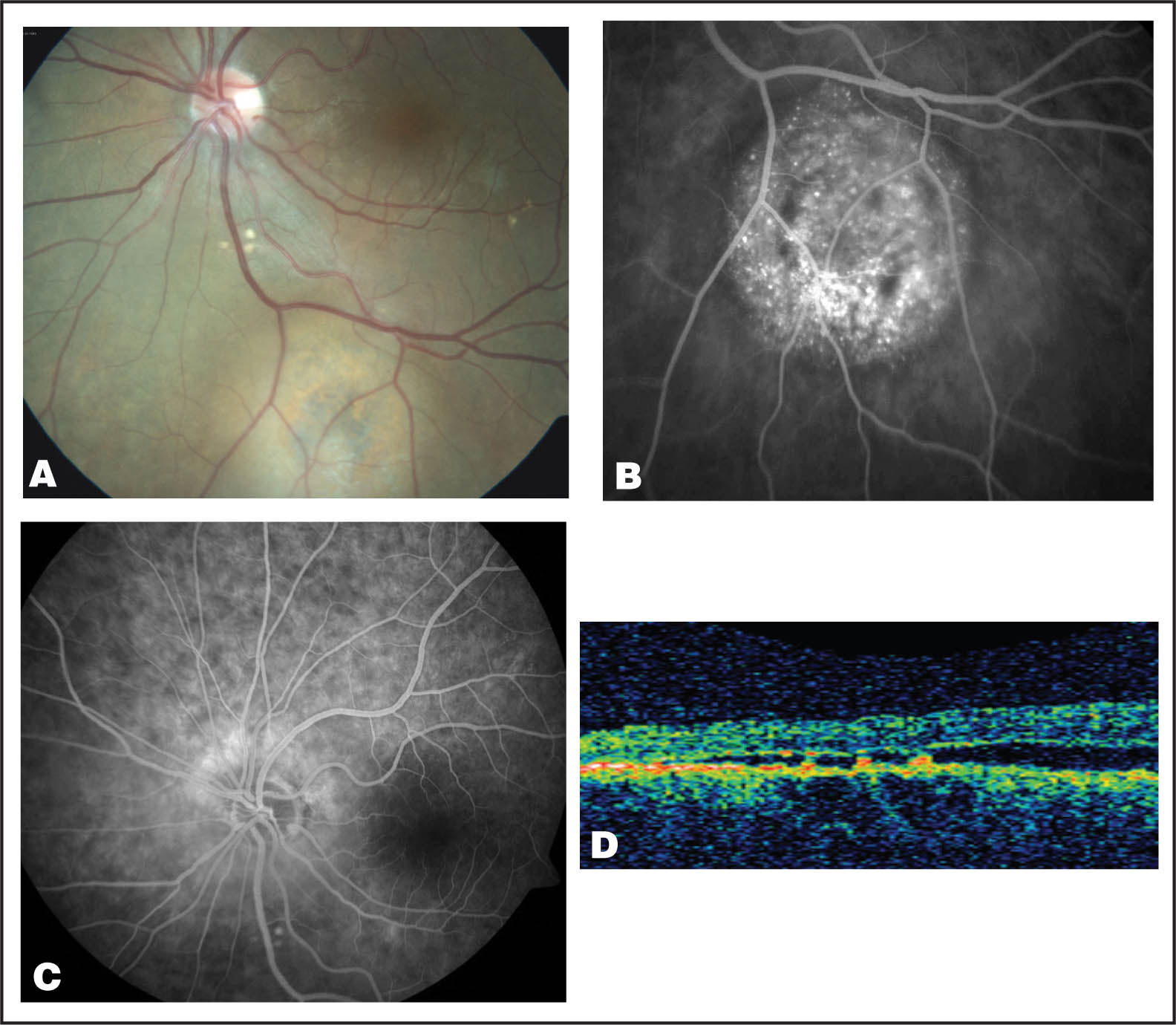 (A) Left Fundus View Shows a Solitary Melanocytic Lesion Below the Inferior Vascular Arcade. (B) On Late Phase Fluorescein Angiography, There Are Multiple Pinpoint Foci of Hyperfluorescence. (C) Fluorescein Angiography Depicts an ill-Defined Area of Small Confluent Islands of Hypofluorescence and Hyperfluorescence. (D) Optical Coherence Tomography of the Same Area Shows Hyperreflective Elements over a Local Area of Retinal Pigment Epithelial Loss.