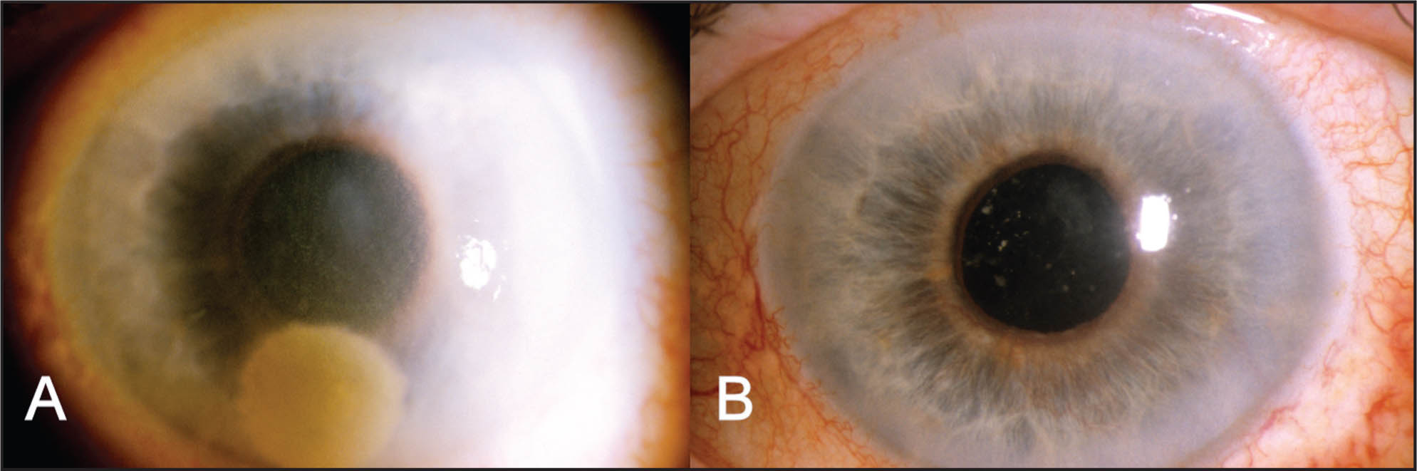 (A) Nucleus of Morgagnian Cataract Causing Early Bullous Keratopathy. (B) Decreased Bullous Keratopathy After Non-Invasive Couching of the Nucleus into the Posterior Segment.