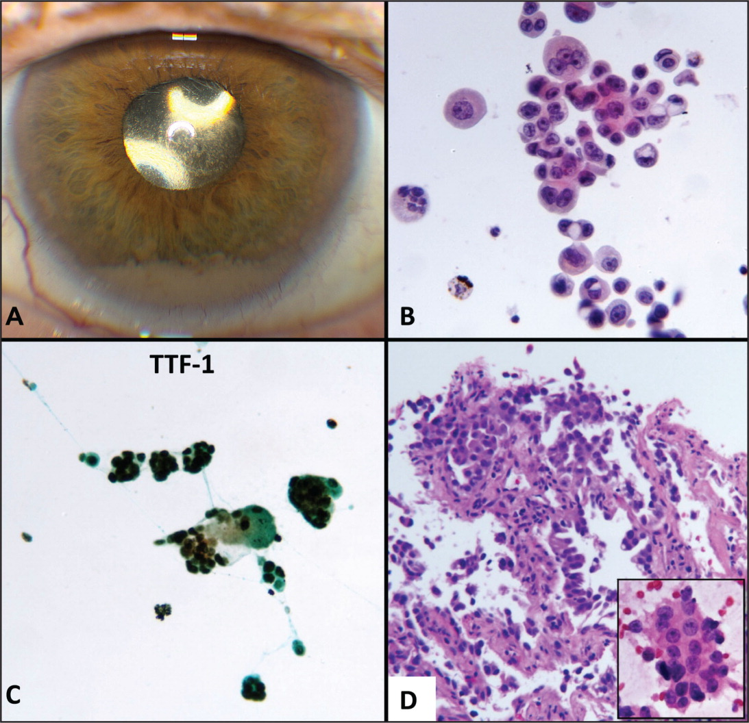 External photograph and photomicrographs. (A) Left eye demonstrates a clear cornea and a gray-white pseudohypopyon along the inferior portion of the chamber secondary to metastatic seeding from a lung primary. (B) Anterior chamber cytology exhibits atypical vacuolated epithelial cells that are variably multi-nucleated (hematoxylin–eosin, original magnification ×400). (C) Anterior chamber cytology, positive TTF-1 stain (thyroid transcription factor-1, original magnification ×200). (D) Lung biopsy, fine needle aspiration. Well-differentiated clusters of epithelial tumor cells exhibiting prominent eosinophilic intracytoplasmic globules along alveolar walls (hematoxylin–eosin, original magnification ×200). Inset: Touch preparation of lung biopsy. High magnification reveals the adjacent nuclei vary widely in size (hematoxylin–eosin, original magnification ×400).
