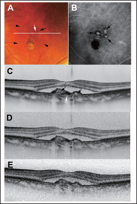The left eye of a 63-year-old man exhibited decreased visual acuity. A color fundus photograph (A) shows serous retinal detachment (black arrowhead) with orange-red spots in the macula (black arrow) and a small subretinal pigment epithelium (RPE) hemorrhage (white arrow). The white line indicates the scanning line of optical coherence tomography (OCT) images (C, D, and E). The late phase of the indocyanine green angiography image (B) shows 3 polypoidal lesions (black arrow). High-penetration enhanced depth imaging OCT imaging (C) reveals polypoidal lesions (black arrow) and sub-RPE hemorrhage (white arrow). On both high-penetration OCT (D) and OCT at 840-nm images without image averaging (E), these sub-RPE lesions were depicted as blurred, low-contrast structures; however, high-penetration OCT images without image averaging displayed better contrast of sub-RPE lesions than OCT at 840-nm images without image averaging.