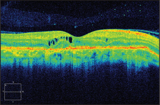 Spectral-domain optical coherence tomography section of the right macula at 5 months of follow-up.