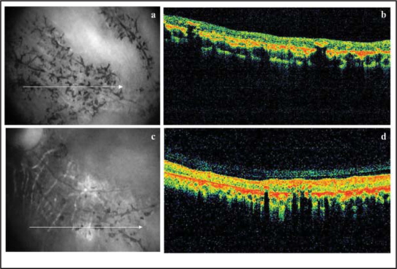 Spectral-domain optical coherence tomography scans through (A and B) right superotemporal vein and (C and D) left inferotemporal vein shows thinning of the retinal layers with increased backscattering and disorganization of the retinal pigment epithelium–choriocapillaris complex. Hyperreflective plaques with underlying shadowing are picked up in the superficial retina corresponding to pigment clumps seen clinically.