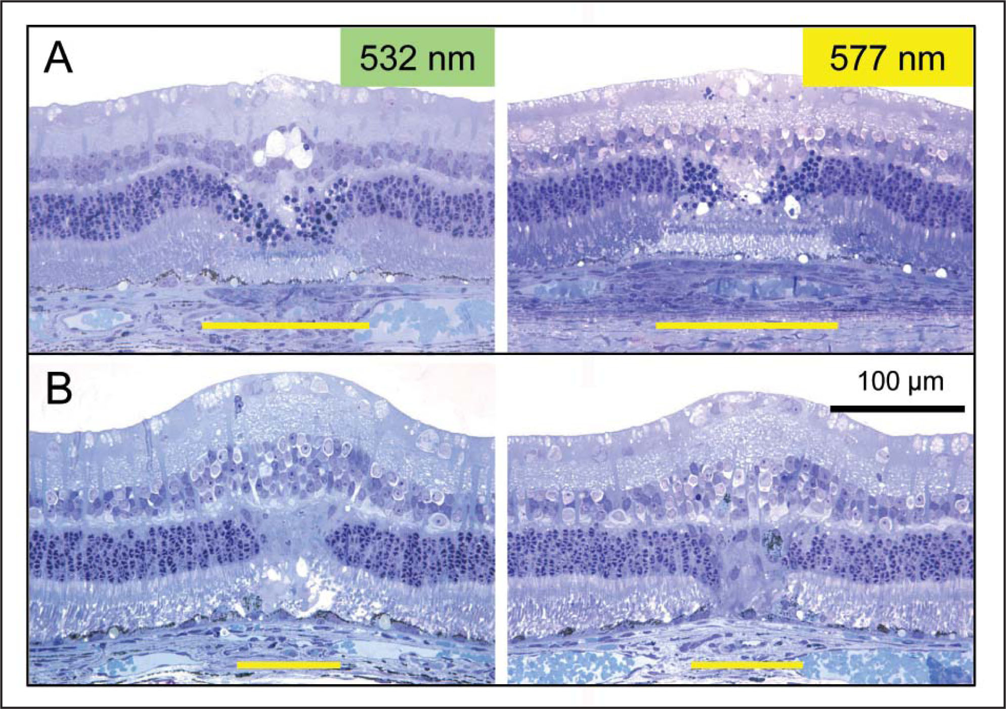 Representative histologic sections (toluidine blue staining, original magnification ×20) of 577- and 532-nm mild coagulation lesions (20-ms pulse duration) at (A) 1 day and (B) 7 day post-laser time-points. Lesion width at the retinal pigment epithelium does not appear to vary between 577- and 532-nm laser lesions, and similar shrinkage of the lesion (34% reduction in lesion width) occurred over 1 week for both types of lesions. No difference in inner retinal or choroidal damage is observed. Yellow bar indicates the width of the lesion at the retinal pigment epithelium–photoreceptor junction.