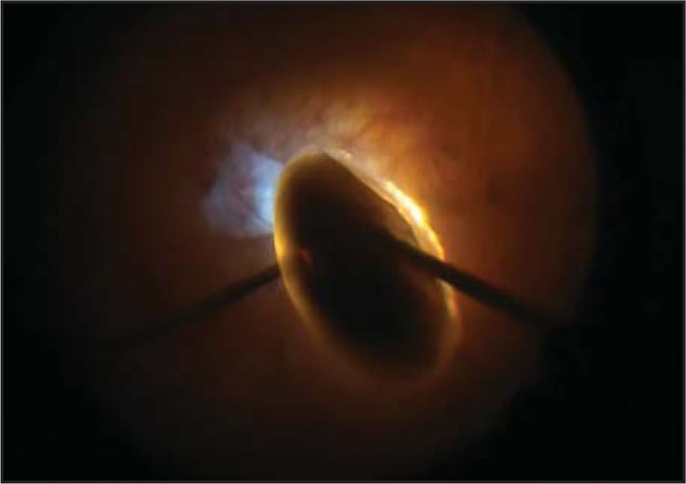 The light pipe is used to crush nuclear material against the 23-gauge vitrectomy probe to facilitate its removal.