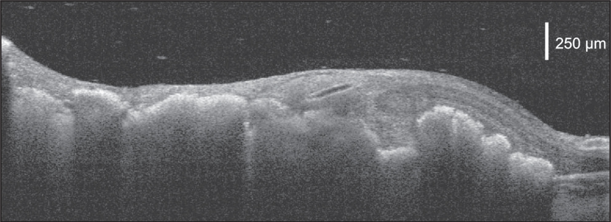 Spectral-domain optical coherence tomography of a patient with retinoblastoma demonstrating an absence of exudation, a corrugated hyperreflective band representing the inner aspect of the tumor, disruption of the surrounding retinal architecture, and a shadowing effect beneath the inner edge of the tumor.