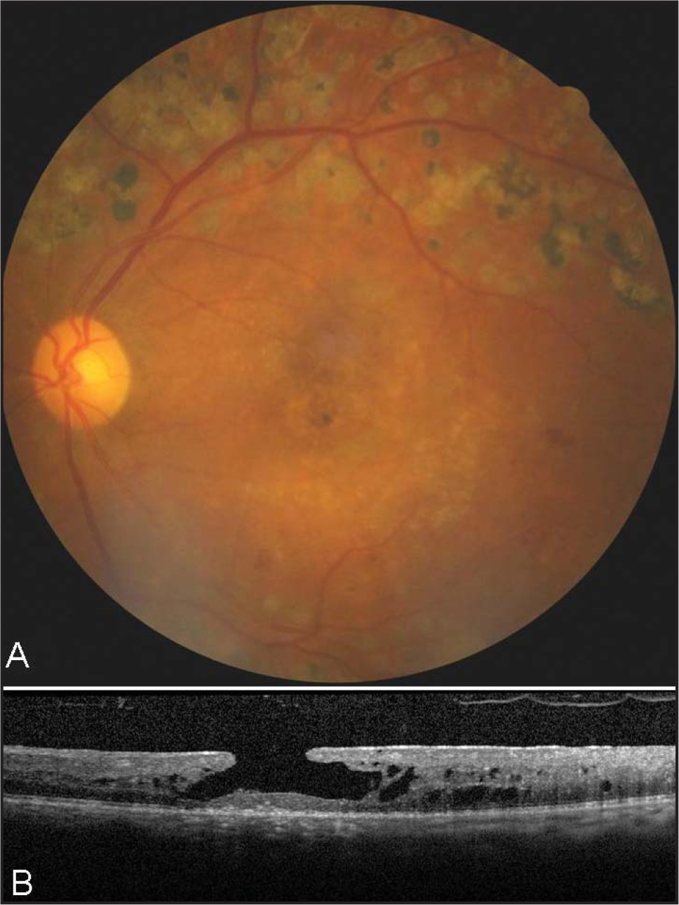 (A) Fundus photography showing the appearance of a macular hole. (B) Optical coherence tomography scan demonstrating a lamellar macular hole.