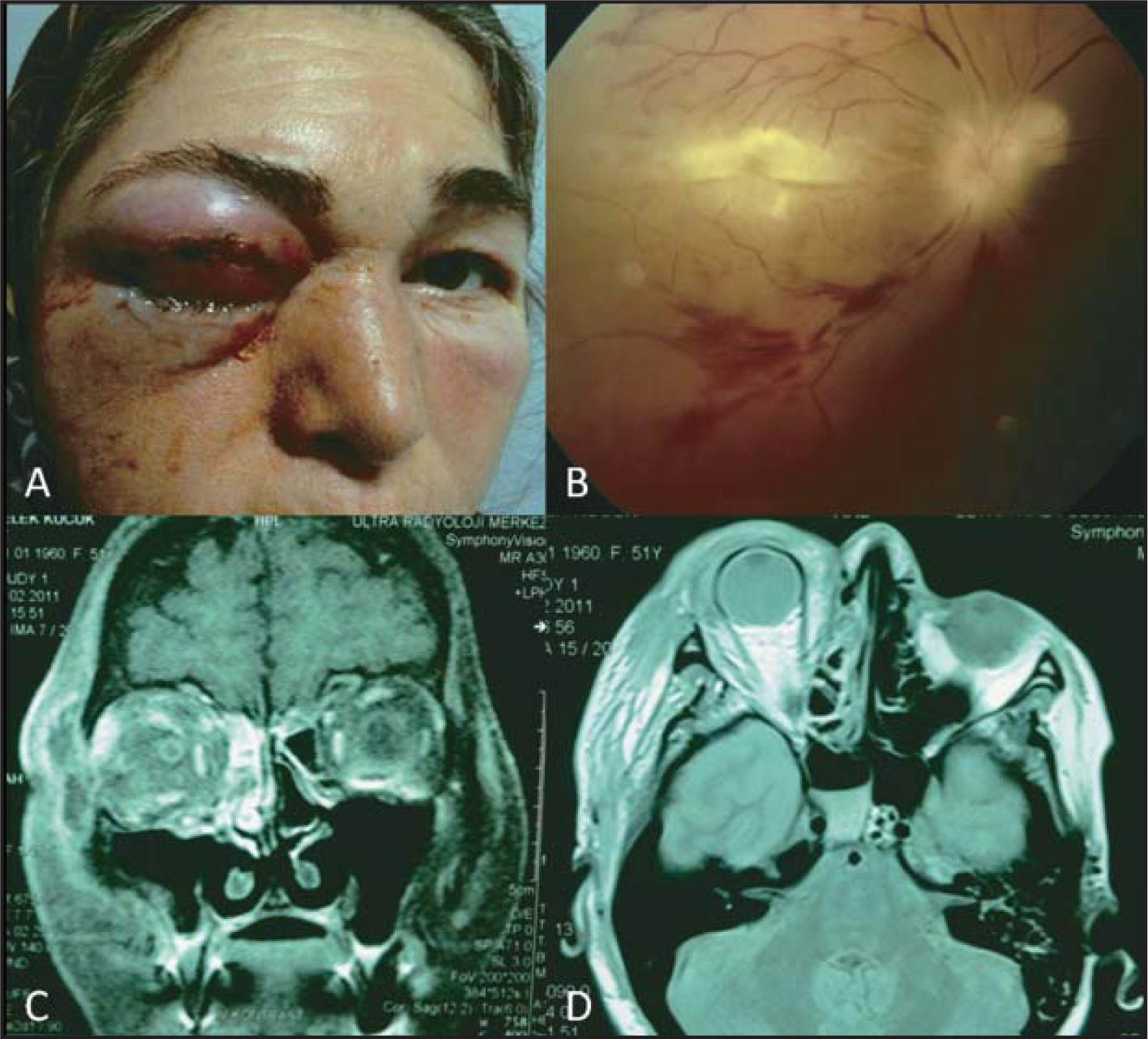 (A) The patient with marked proptosis, eyelid edema, and purulent discharge. (B) Fundus photograph at initial examination reveals optic disc edema, attenuated arterioles and venules, preretinal and intraretinal hemorrhages, and retinal whitening. (C) Coronal contrast-enhanced T1-weighted magnetic resonance imaging demonstrates enhancement of orbital soft tissue and opacification of ethmoidal air cells. (D) Axial T1-weighted magnetic resonance imaging shows marked proptosis, soft tissue thickening, and edema.