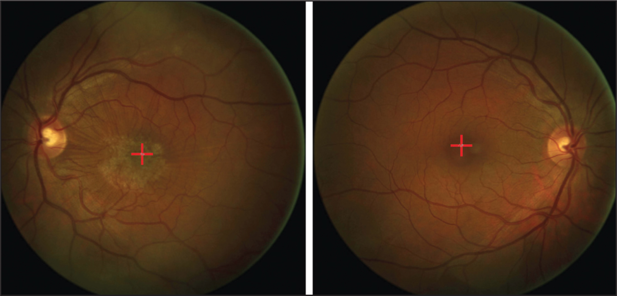 Fundus Photographs Of A Patient With Epiretinal Membrane In The Left Eye