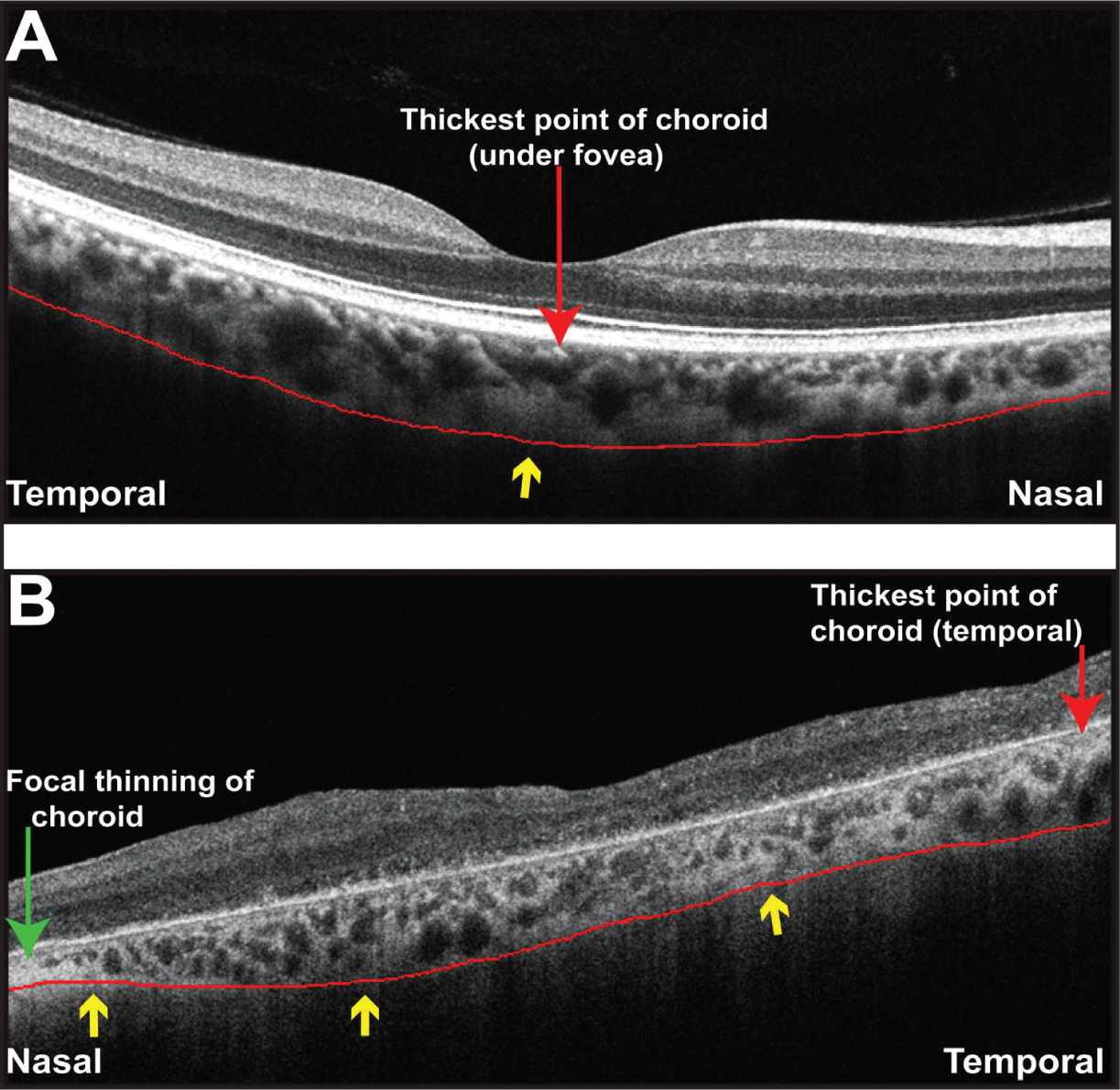 """Analysis of the choroidal morphology in healthy eyes and eyes with retinitis pigmentosa (RP). (A) Representative OCT image of a healthy eye. Note that the choroid is thinnest nasally, thickest beneath the fovea (red arrow) and thins out temporally. Red line represents the smooth, convex (or """"bowl"""") shape to the border of the choroid and sclera and yellow arrow represents one point of inflection. (B) Representative OCT image of an eye with RP. Note the exaggerated nasal thinning (green arrow) and an irregular or S shape to the border of the choroid and sclera (red line) with more than one inflection point (yellow arrows). The thickest point of the choroid is not under the fovea and is temporally located (red arrow)."""