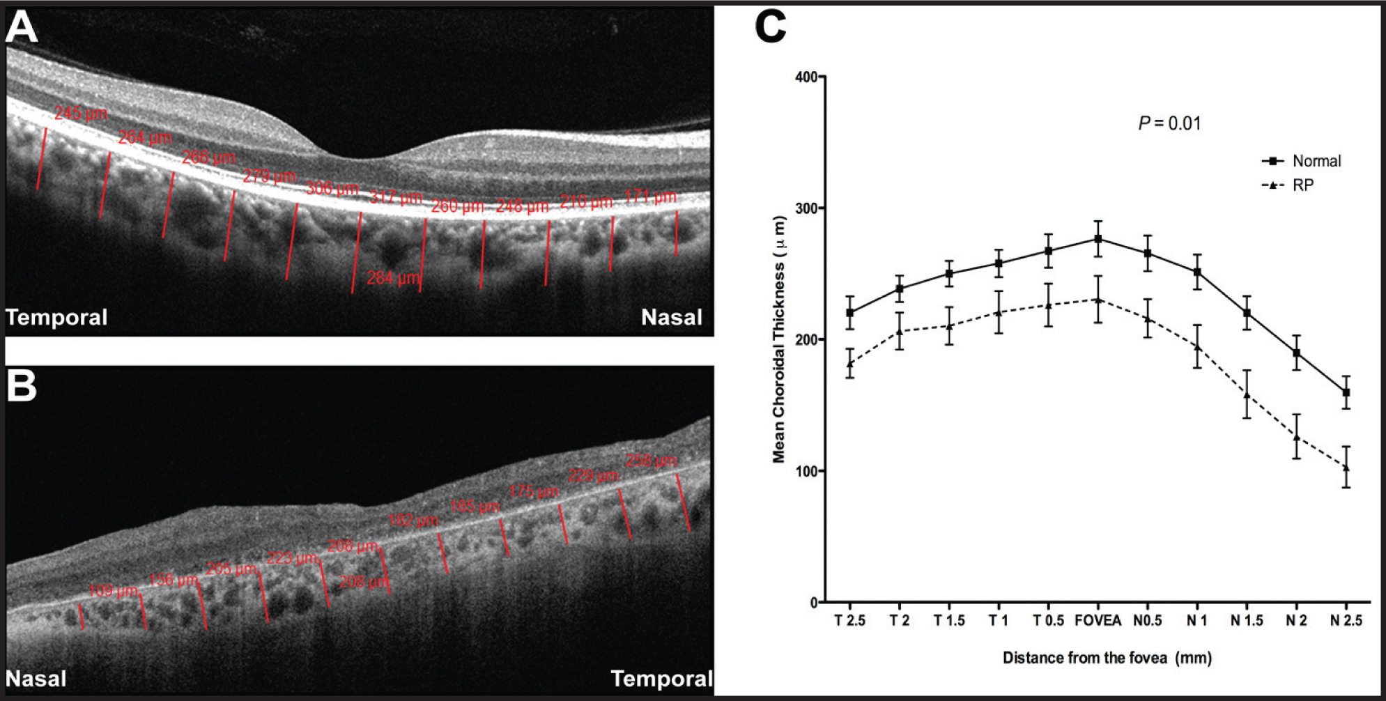Choroidal thickness measurements. Representative OCT image of a healthy eye (A) and an eye with retinitis pigmentosa (B) showing choroidal thickness measurements using the Cirrus linear measurement tool at 11 locations (red lines and numbers). (C) Graph of the mean choroidal thickness, showing thinning of the choroid at all locations in eyes with RP, when compared to healthy eyes. P value represents the results of Mann-Whitney test. T = temporal; N = nasal.