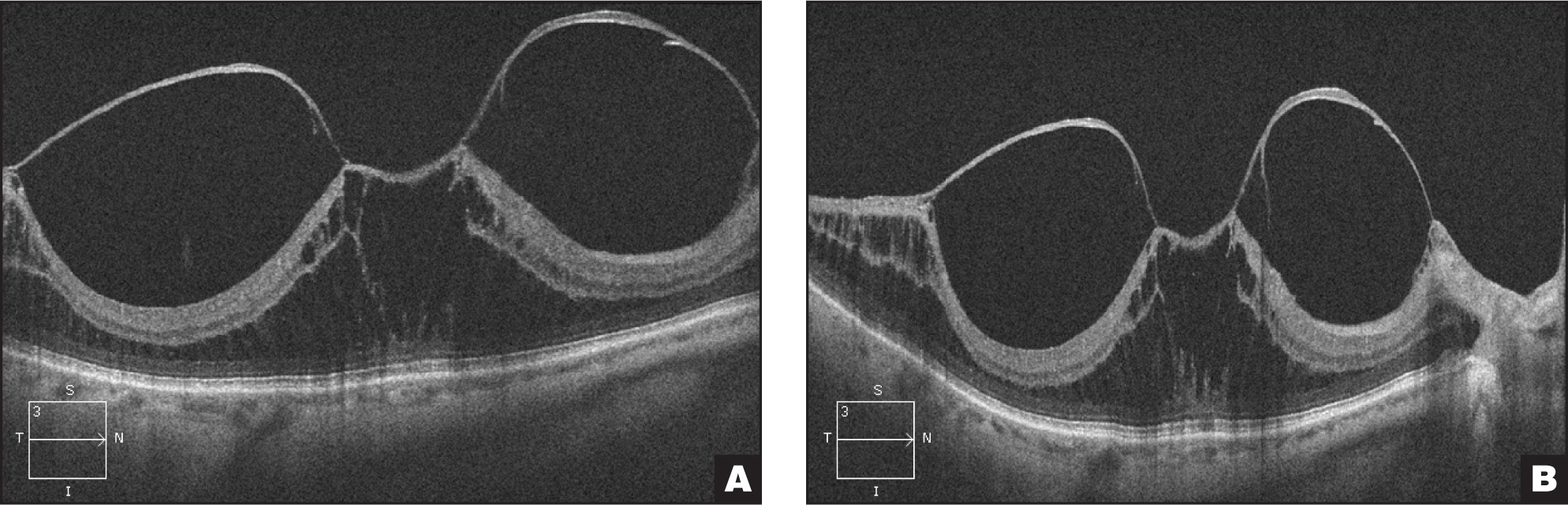 (A) This patient had retinal detachment in the contralateral eye and has a thick posterior hyaloid with a central 878 μm adhesion diameter. Multiple adhesions can be seen in the peripheral macula and nerve head. (B) At 1 week, there was no improvement on OCT. This patient was lost to follow-up.