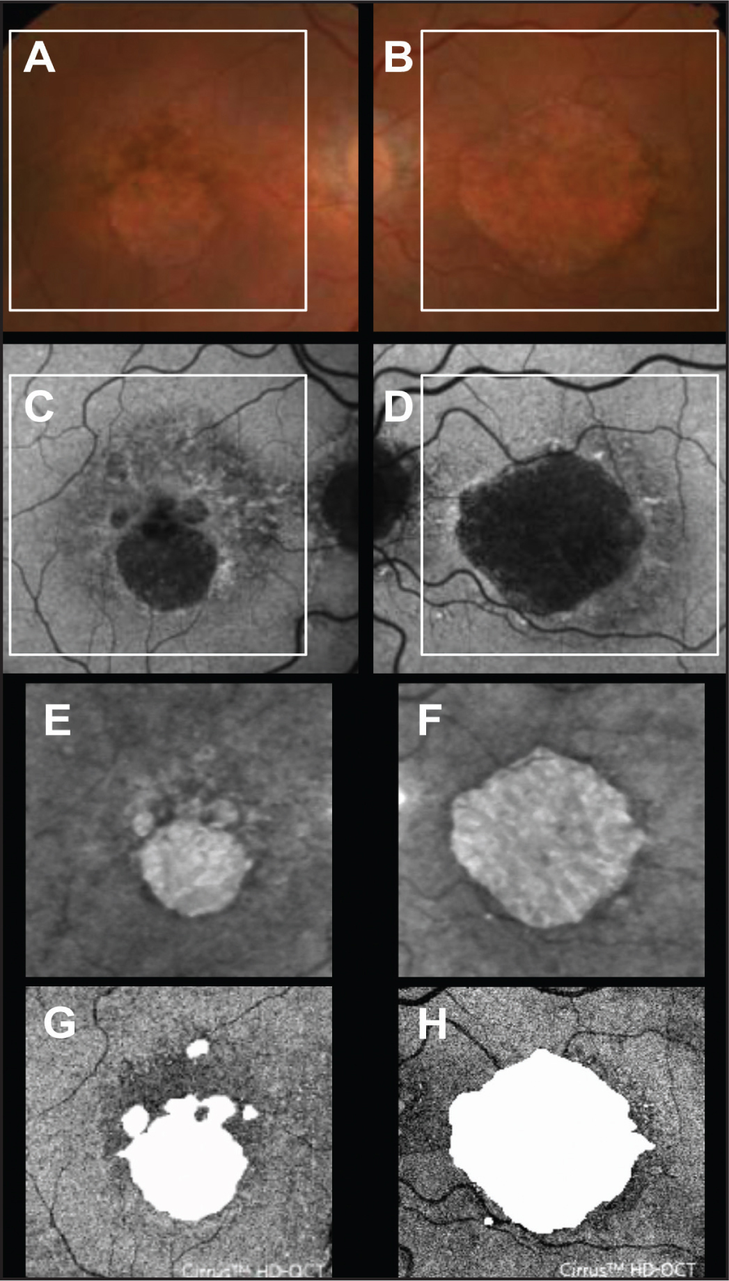 Baseline images of geographic atrophy (GA) from both eyes of an 80-year-old man with nonexudative age-related macular degeneration and focal disruption of the outer retina. (A,B) Color fundus images with a superimposed square depicting the area scanned with spectral domain optical coherence tomography (SD-OCT) imaging. (C,D) Fundus autofluorescence images with a superimposed square depicting the area scanned with SD-OCT imaging. (E,F) Sub-RPE slabs. (G,H) En face images derived from the outer retinal slab described in Figure 1 with the superimposed images of GA (white) derived from the corresponding sub-RPE slabs at baseline.