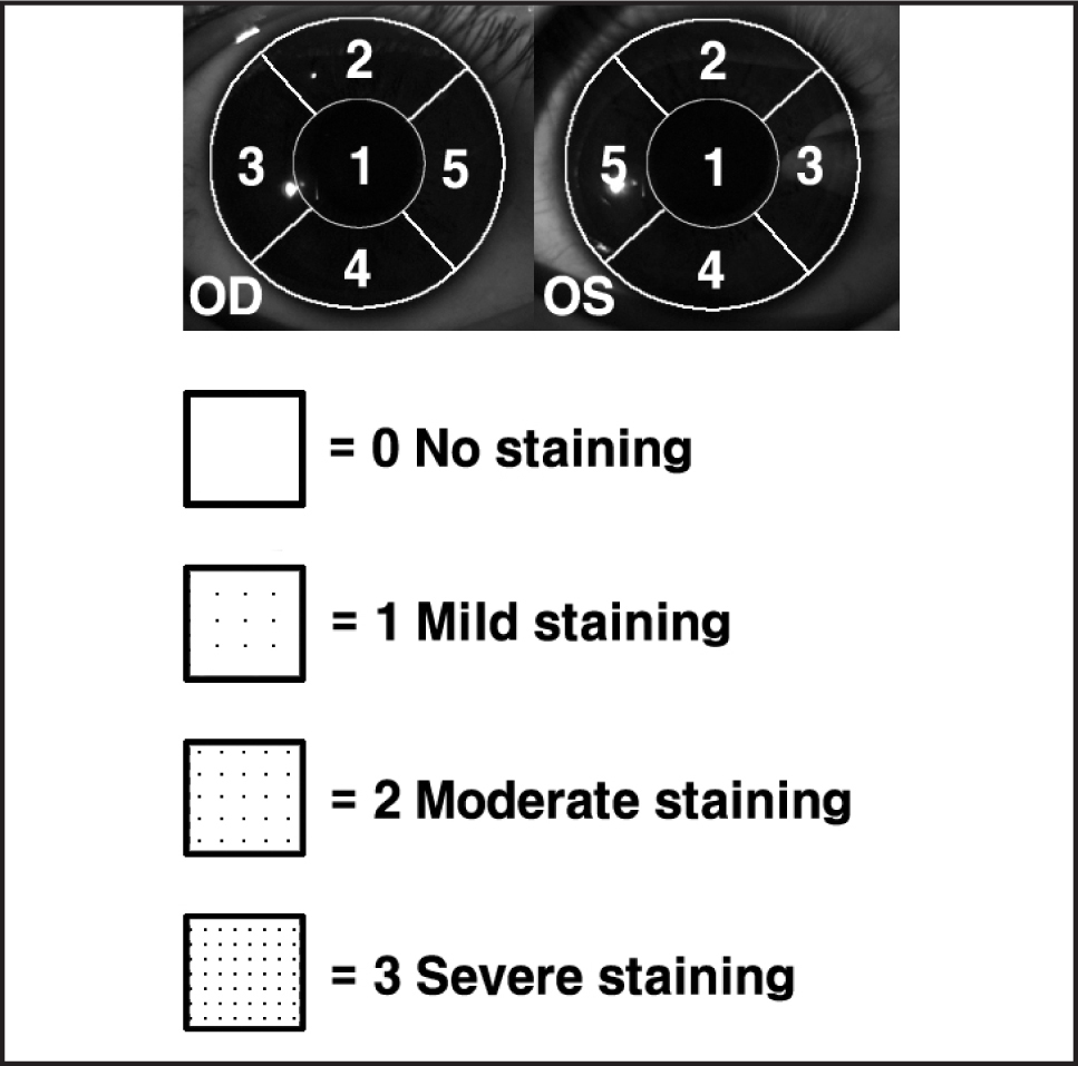 Map of the National Eye Institute corneal grading system. The cornea is divided into five areas graded on a scale of 0 to 3. The maximum possible staining score is 15.