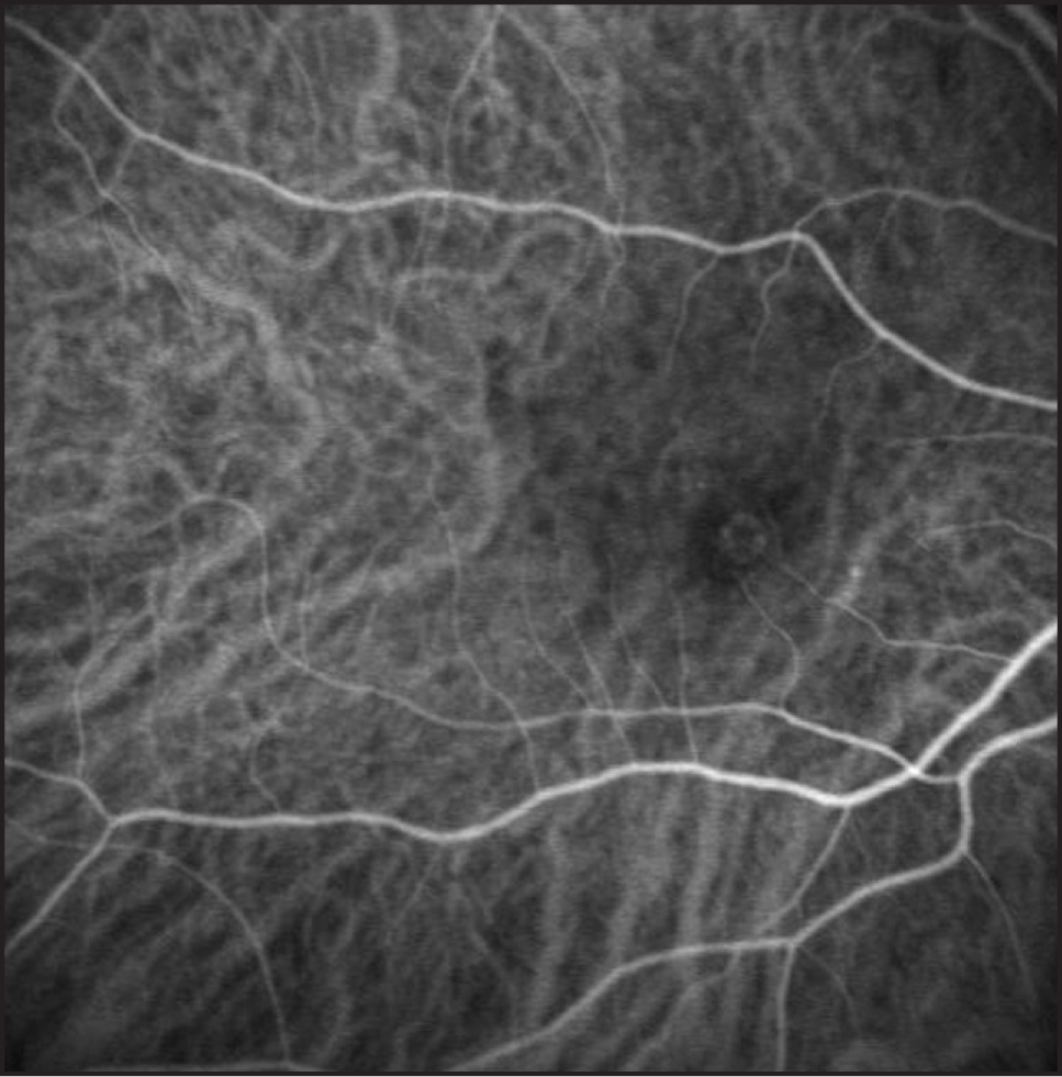 Indocyanine green angiogram of the right eye in case 1 demonstrating a stage 1 circular retinal angiomatous proliferation.