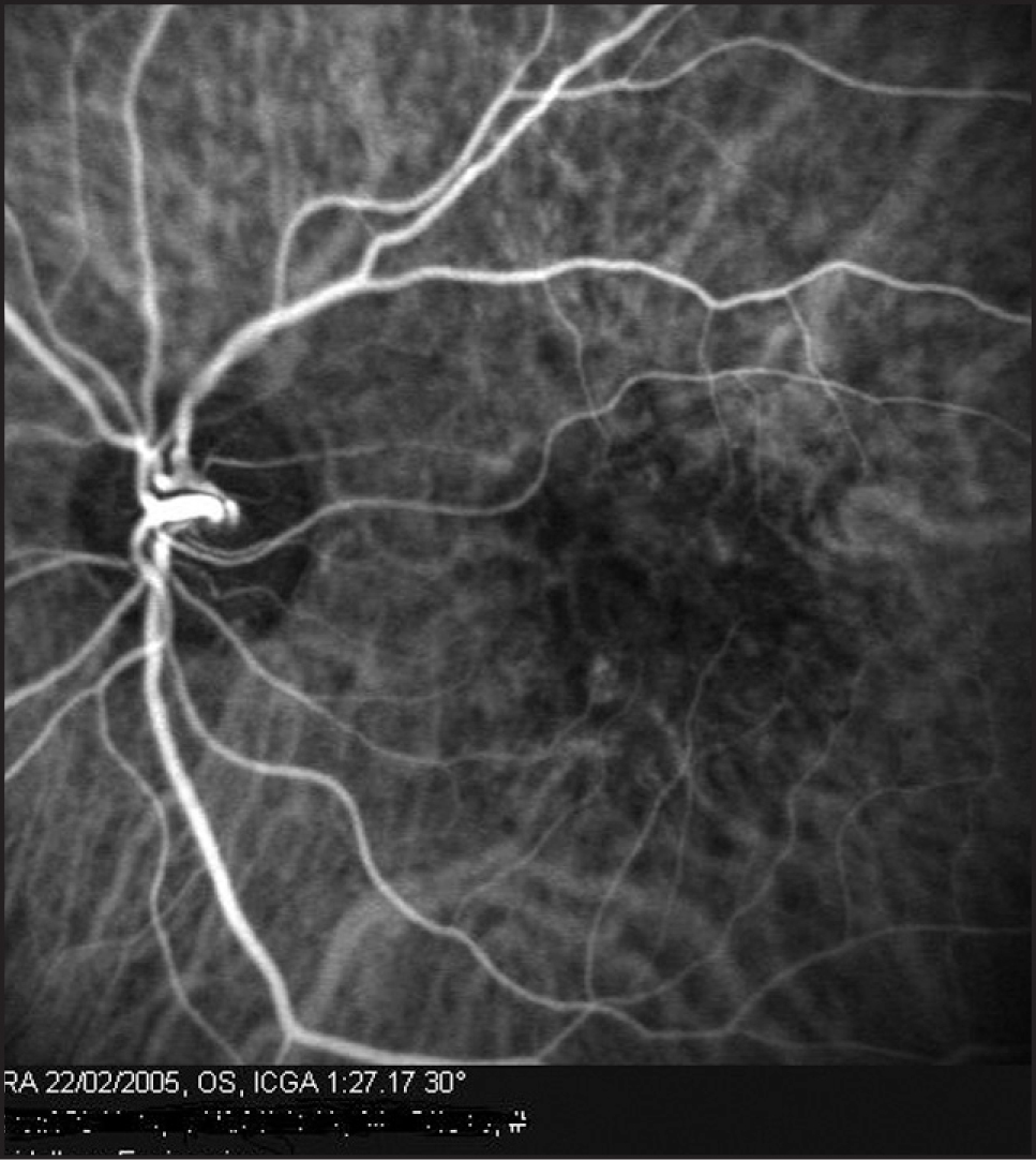Indocyanine green angiogram of the left eye in case 3 revealed a stage 1 geographic retinal angiomatous proliferation inferior nasal to the fovea.