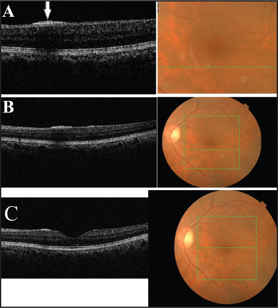 (A-C) Spectral-domain optical coherence tomography reveals a hyperreflective band in the nerve fiber layer and internal limiting membrane with the nematode (A, arrow). Optical coherence tomography from one end of the worm shows a hyperreflective band in the nerve fiber layer and internal limiting membrane compatible with the other end of the worm.