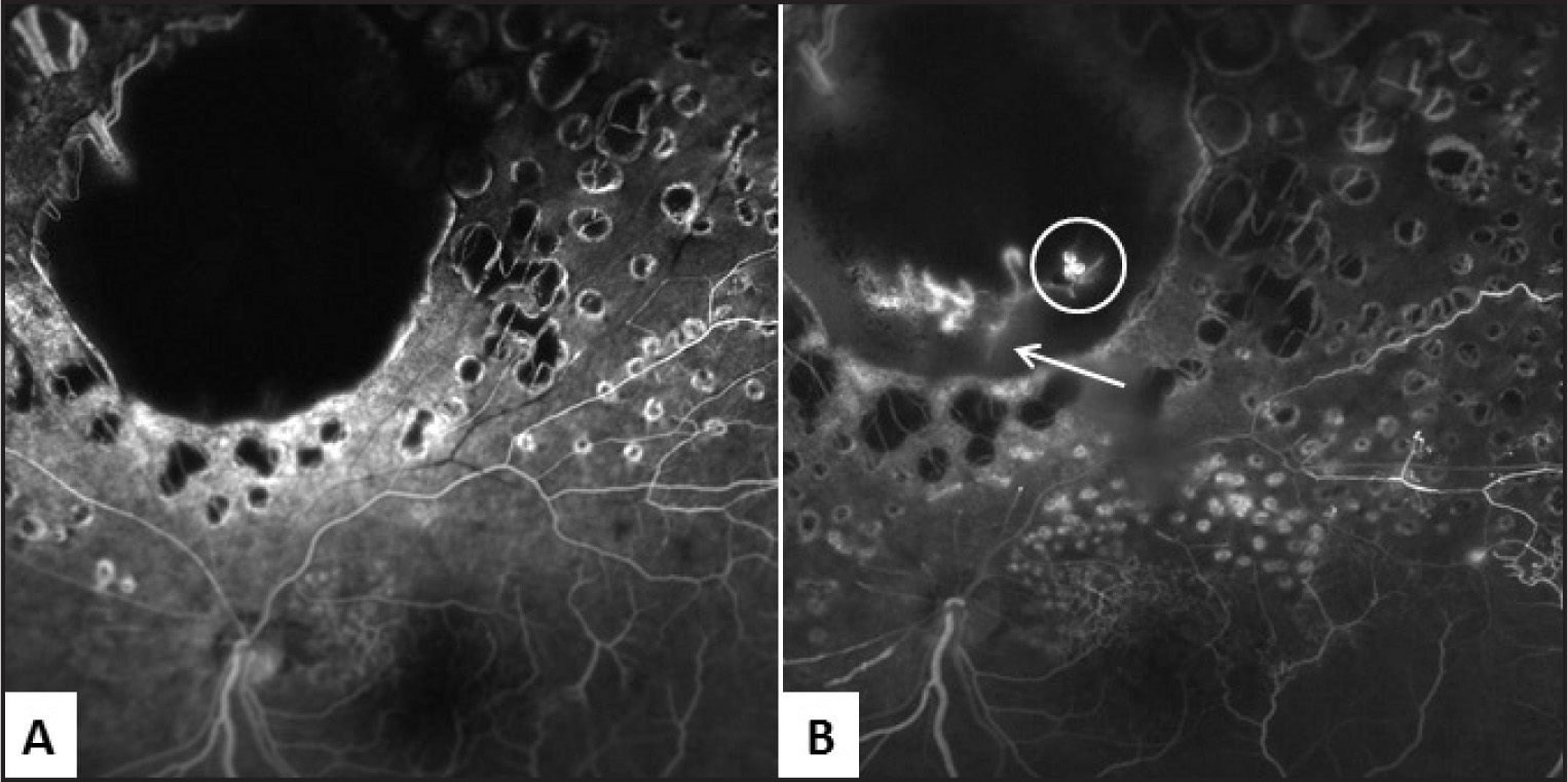 Early-phase fluorescein angiography (FA) of the left eye. (A) FA taken 3 years prior to presentation showing a large zone of chorioretinal scarring devoid of retinal and choroidal vessels. (B) FA taken at presentation showing new vessels within the scar adjacent to the edge of the perfused tissue, appearing as saccular dilations (white circle). The neovascularization arises from presumed connections to the choroidal vessels at the edge of the scar (white arrow).