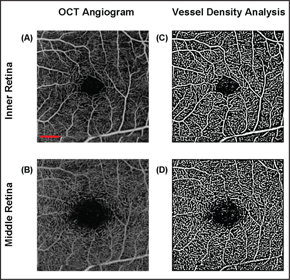 OCT angiogram and vessel density analysis of a 3 × 3 mm2 area centered on the fovea of a healthy subject. En face representation of the retinal vessels in the (A) inner retinal layer and (B) middle retinal layer. (C,D) Contrast enhanced images of the respective retinal regions in (A) and (B). (C) Vessel density analysis of the inner retina showed an average total density of 31.68% ± 1.15%. (D) Vessel density analysis of the middle retina showed an average total density of 30.86% ± 1.20%. The scale bar in (A) shows a distance of 500 µm. This scale applies to (A–D).