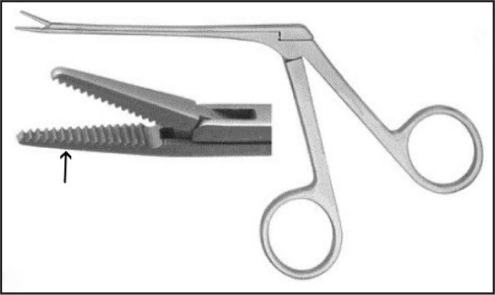 The micro alligator forceps: a 45°-angle long shaft, serrated jaws (arrow), 4-mm jaw length, 6-mm maximum opening width, and 1.5-mm tip width.