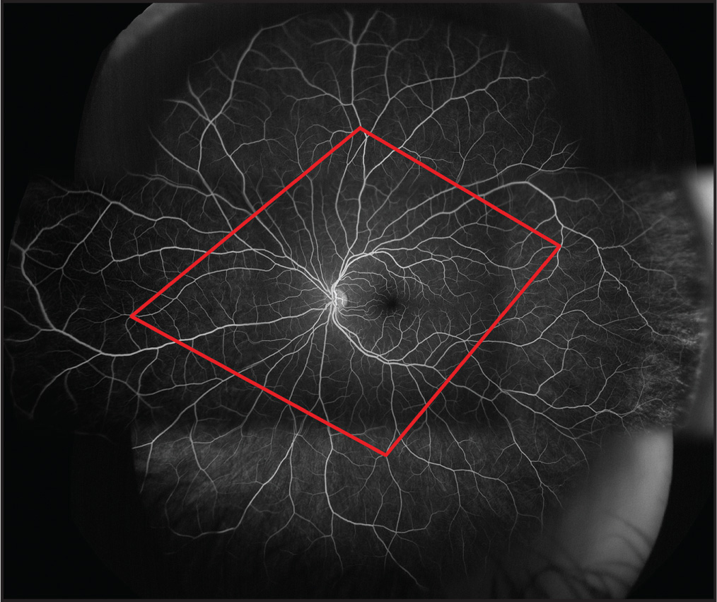 Method utilized to assess the precision of montaging and quantification. Four vascular landmarks define the vertices of the red quadrilateral, which was quantified across 10 unique fluorescein angiography montages from the same anatomically stable, healthy eye.