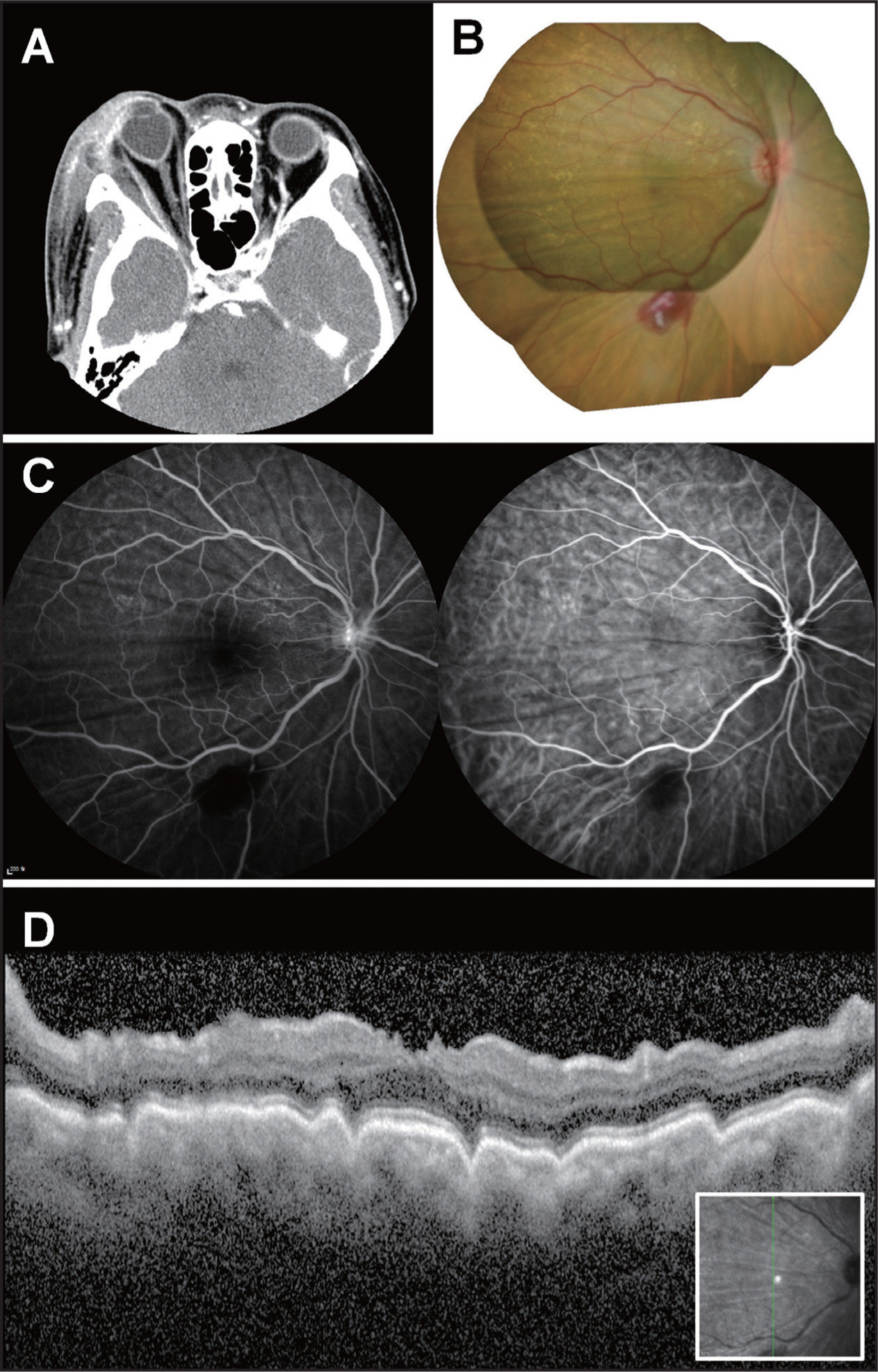 Initial Images Of The Choroidal Folds Caused By An Orbital Abscess A Computed