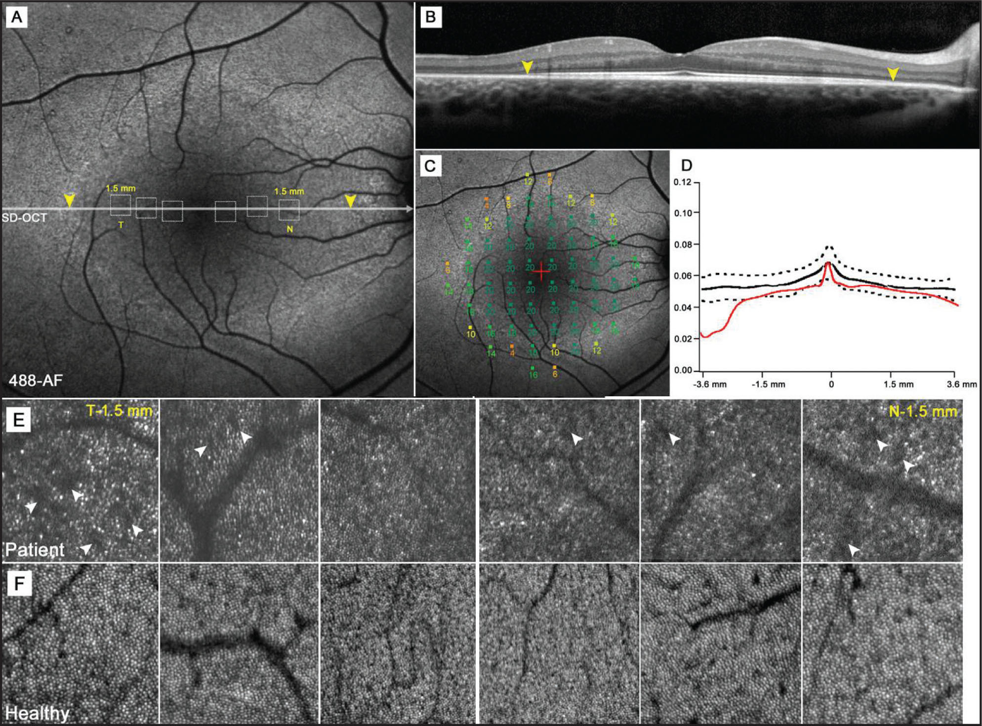 An 11-year-old boy (case 1) with autosomal-dominant RHO, D190N retinitis pigmentosa. (A) Autofluorescence (AF) image of the right macula exhibiting a hyperautofluorescent ring around the fovea. Yellow arrowheads mark disruption to the inner segment ellipsoid band as detected by spectral-domain OCT (B). Dotted squares represent corresponding areas of adaptive-optics scanning laser ophthalmoscope imaging (AO-SLO) (E). (C) Microperimetry mapping reveals a decline in visual sensitivity (dB) across the hyperautofluorescent ring but no loss in sensitivity in areas within the ring. (D) A plot of photoreceptor outer segment and retinal pigment epithelial thickness across the fovea and retinal thickness in the same area within the ring, showing abrupt thinning beyond the borders of the ring. (E) AO-SLO images taken at positions 0.5, 1.0, and 1.5 mm (temporally and nasally) from the fovea. Corresponding areas are mapped to a 30° AF image (A). (F) AO-SLO images taken within the same retinal positions in an age-matched healthy subject.