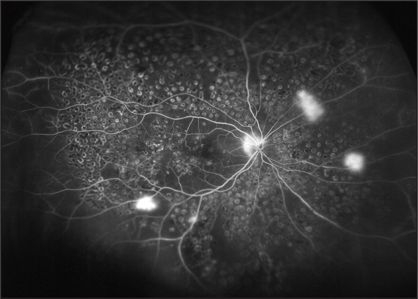 Widefield fluorescein angiogram taken using the Optos 200Tx (Optos, Dunfermline, U.K.). Despite extensive panretinal photocoagulation, areas of capillary nonperfusion are seen together with several areas of hyperfluorescence caused by leakage from retinal neo-vascularization at the optic disc and elsewhere.