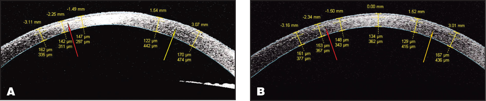 (A) Anterior segment optical coherence tomography 1 month after surgery. The −1.50 and −2.25 mm measurements within the involved area of the temporal cornea show the flap thickness is maintained in the affected area (red arrows) compared with the uninvolved nasal cornea (yellow arrows). This localizes the tissue loss to just posterior to the flap in the residual stromal bed (red arrows). This corresponds to the clinical observation of the interface opacity extending posteriorly into the stroma as reported by Sonmez and Maloney.1 (B) Follow-up scan showing interval decrease in stromal thinning.