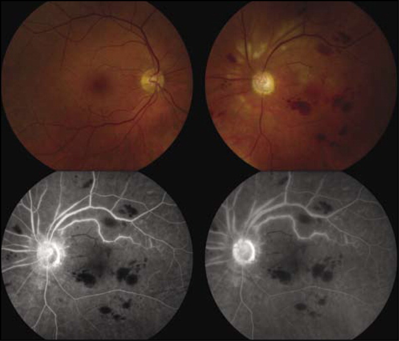 Fundus photography and fluorescein angiography of a patient with macular infarction after intravitreal gentamicin. (Top left) Normal retina in the right eye. (Top right) Affected left eye with a pale disc, retinal hemorrhages, macular edema, and multiple nerve fiber layer infarcts. (Bottom left) Fluorescein angiography, early phase, left eye, with incomplete filling of the narrowed arterioles in the macula. (Bottom right) Fluorescein angiography, late phase, left eye, with staining of the vessel walls and perivascular leakage.