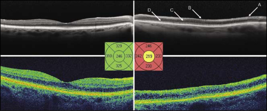 Spectral-domain optical coherence tomography (SD-OCT) features comparing the normal macula of the right eye and macular infarction of the left eye following intravitreal gentamicin. (Top left) Heidelberg SD-OCT (Heidelberg Engineering, Inc., Heidelberg, Germany), right eye. (Top right) Heidelberg SD-OCT, left eye. (Center left) Quantitative Cirrus SD-OCT (Carl Zeiss Meditec, Dublin, CA) thickness map, right eye. (Center right) Quantitative Cirrus SD-OCT thickness map, left eye. (Bottom left) Cirrus SD-OCT, right eye. Bottom right: Cirrus SD-OCT, left eye. Compared to the normal right eye, the affected left eye demonstrates increased reflectivity of the nerve fiber and the ganglion cell layers (A), loss of the foveal depression (B), thinning and lack of differentiation of other layers of the inner retina (C), and an intact external limiting membrane and inner segment/outer segment junction (D).