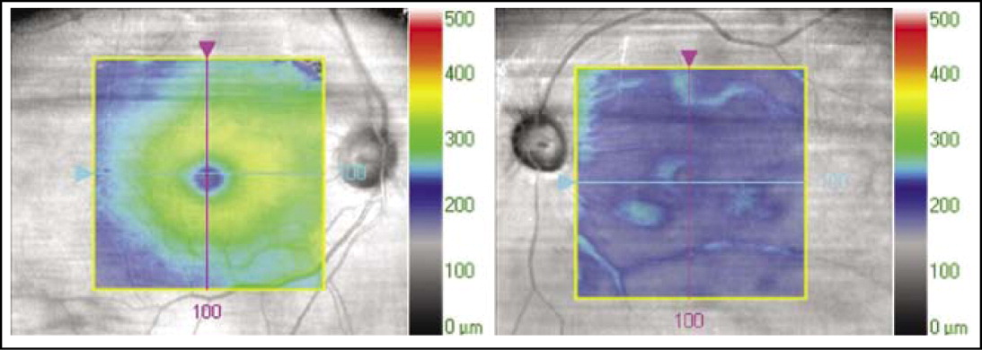 Spectral-domain optical coherence tomography (SD-OCT) comparing internal limiting membrane–retinal pigment epithelium (ILM-RPE) thickness maps of the macula of both eyes. (Left) Cirrus OCT (Carl Zeiss Meditec, Dublin, CA) ILM-RPE thickness map of the macula in the normal right eye. (Right) Cirrus OCT ILM-RPE thickness map of the macula in the affected left eye. The left eye shows a decreased thickness of the central and non-central subfields when compared with the right eye.