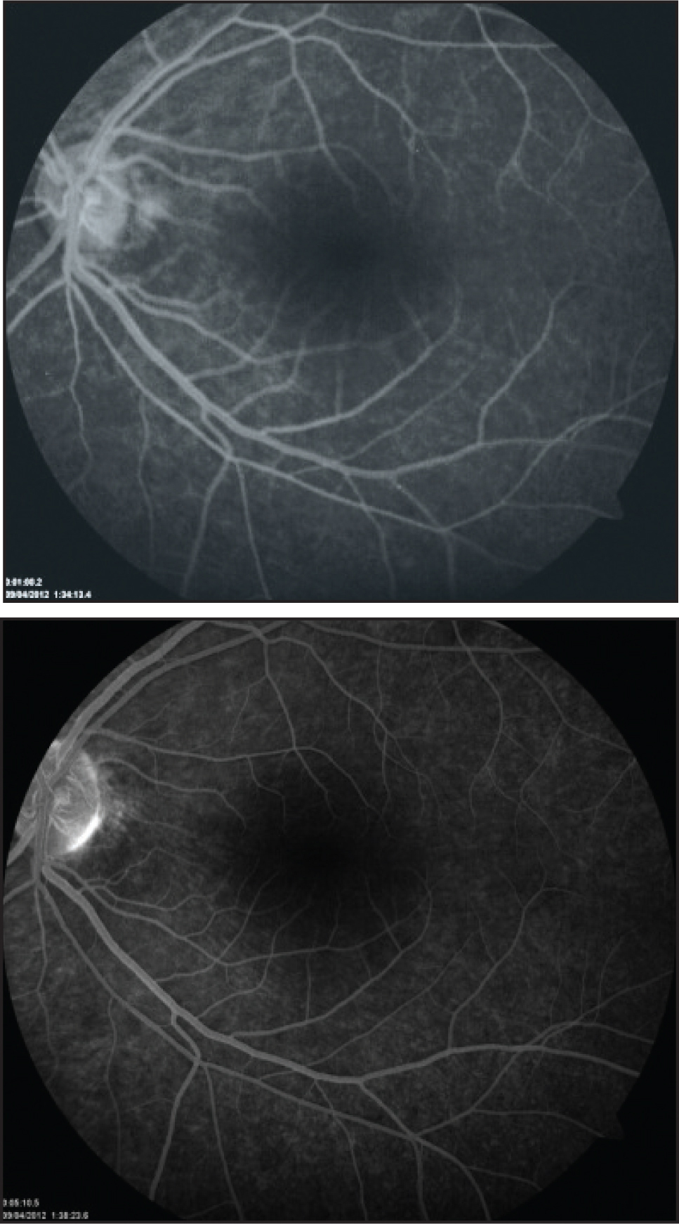 Flourecein angiography of left eye showing a normal arterio-venous filling with no leakage at the disc or macula.