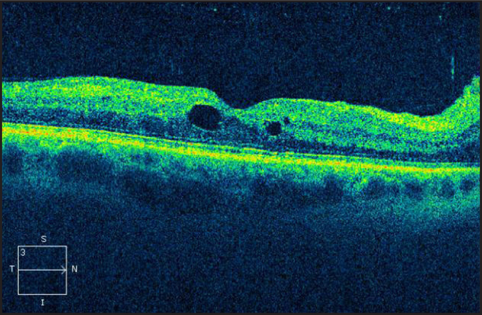 Spectral-domain optical coherence tomography of the macula in the right eye at the 7-month follow-up visit. There is a marked improvement in the intraretinal fluid and resolution of subretinal fluid. The inner segment/outer segment junction appears to be intact.
