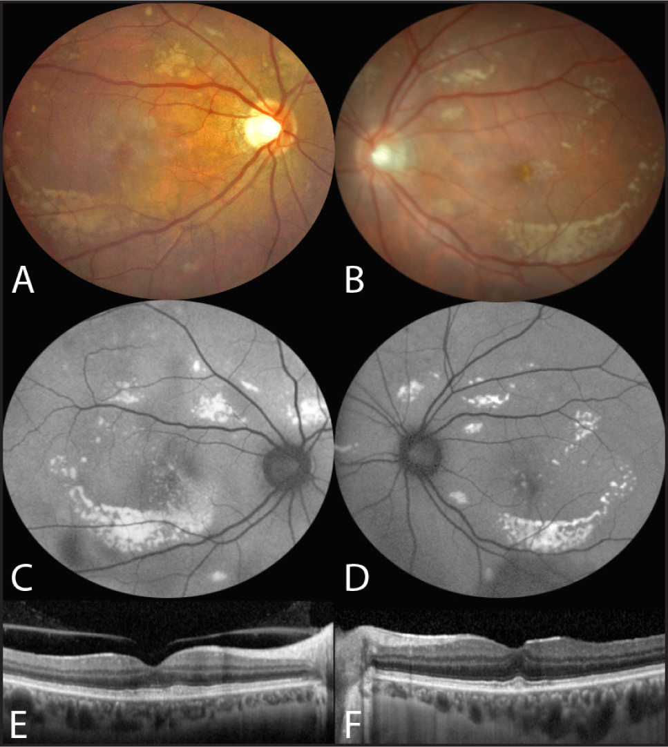 Multimodal imaging of both eyes 2 months after initiation of intravenous antibiotherapy. Color fundus photographs of both eyes (A, B) demonstrate the persistence and rearrangement in a ring configuration of the multifocal vitelliform lesions that appear hyperautofluorescent in the fundus autofluorescence images (C, D). The spectral-domain optical coherence tomography horizontal foveal scans show resolution of the retinal serous detachments and the persistence of some vitelliform lesions subfoveally (E, F).