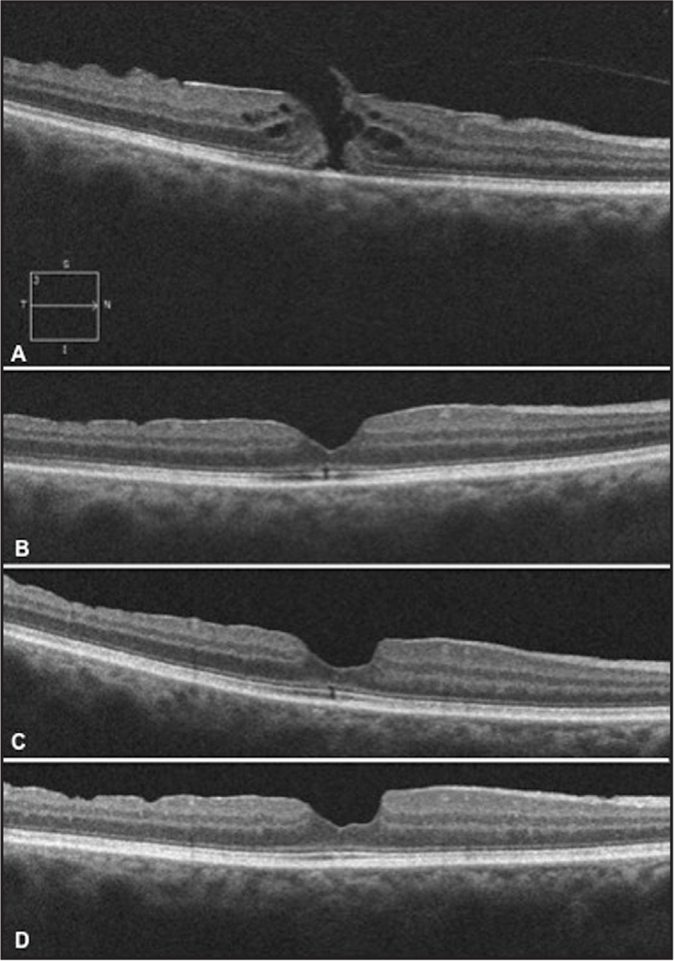 Spectral-domain optical coherence tomography images of the macula over time. (A) Baseline image shows a full-thickness macular hole (MH). (B) Postoperative image at 3 months shows disruption of the external limiting membrane (ELM), inner segment/outer segment (IS/OS) junction, and cone outer-segment tips (COST) line with visual acuity (VA) of 20/50. (C) Postoperative image at 1 year shows an improved external limiting membrane, but slight persistent disruption of the IS/OS junction and COST line with VA of 20/30. (D) Postoperative image at 2 years shows recovered ELM, IS/OS junction, and COST line with VA of 20/20.
