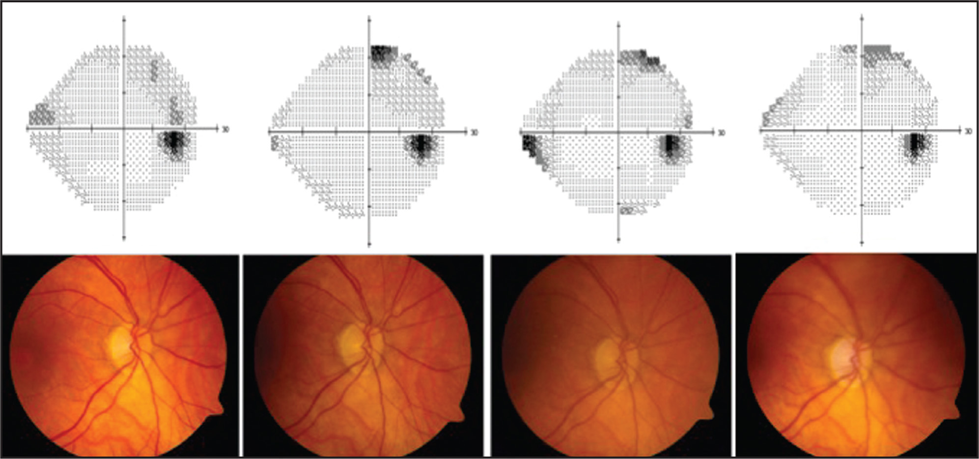 Composite graph of optic nerve color fundus photograph (below) and corresponding visual field (above) of patient 1 study eye taken at baseline (left), 3 months, 12 months, and 24 months (right) postoperatively. Note the superior and nasal defects over time.