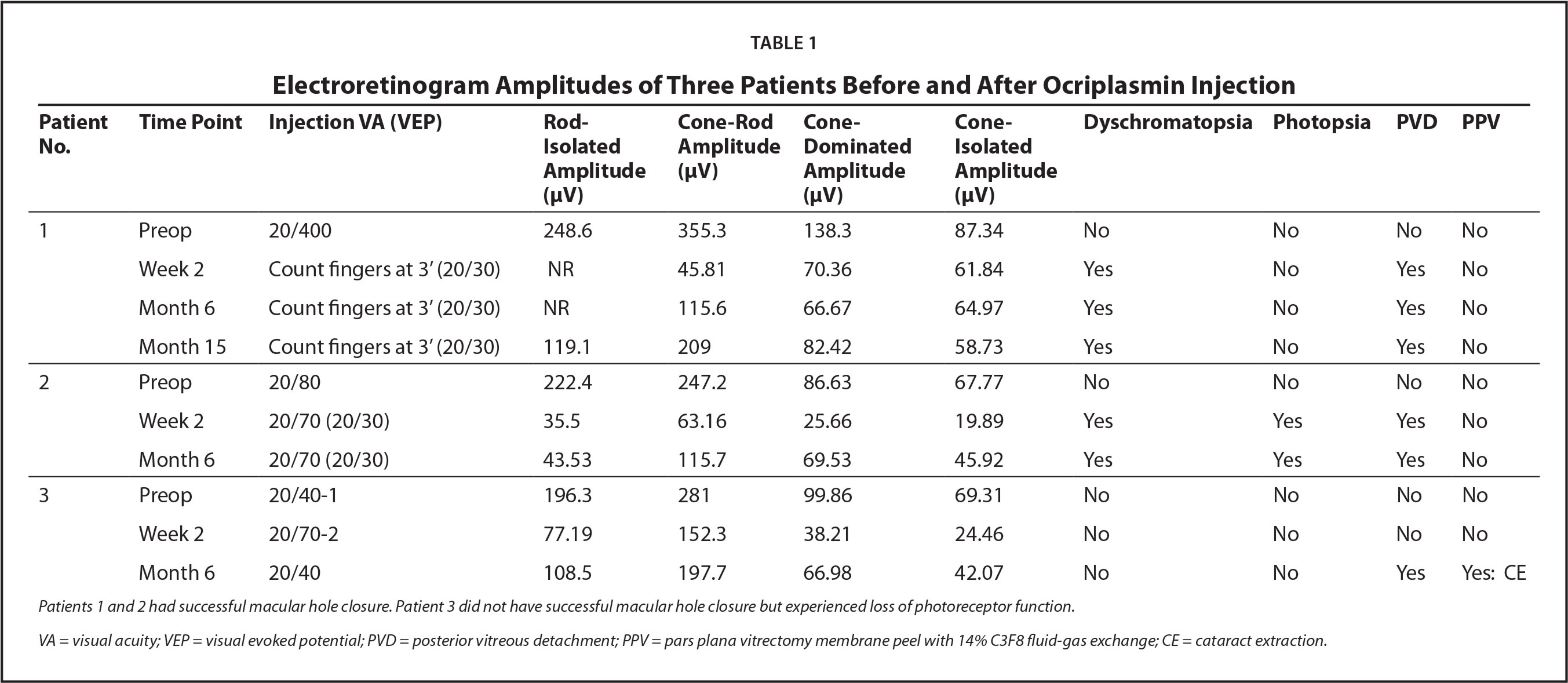 Electroretinogram Amplitudes of Three Patients Before and After Ocriplasmin Injection