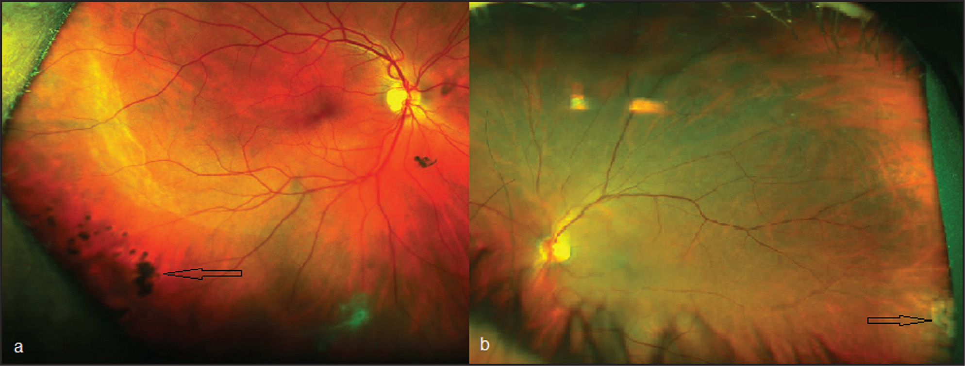 UWF retinal color imaging (Optos 200Tx) demonstrating peripheral lesions using the zooming function of the imaging system. (A) Patient 65 (right eye), a 57-year-old man with a history of retinal tear treated with retinopexy. The Optos image was taken 29 days after uneventful cataract extraction surgery. Note the laser scars (black arrow). No new retinal breaks or detachment were found. (B) Patient 14 (left eye), a 69-year-old man. The Optos image was taken 8 days after uneventful cataract extraction surgery. Note chorioretinal atrophy at the temporal far periphery (black arrow). No new retinal breaks or detachment were found.